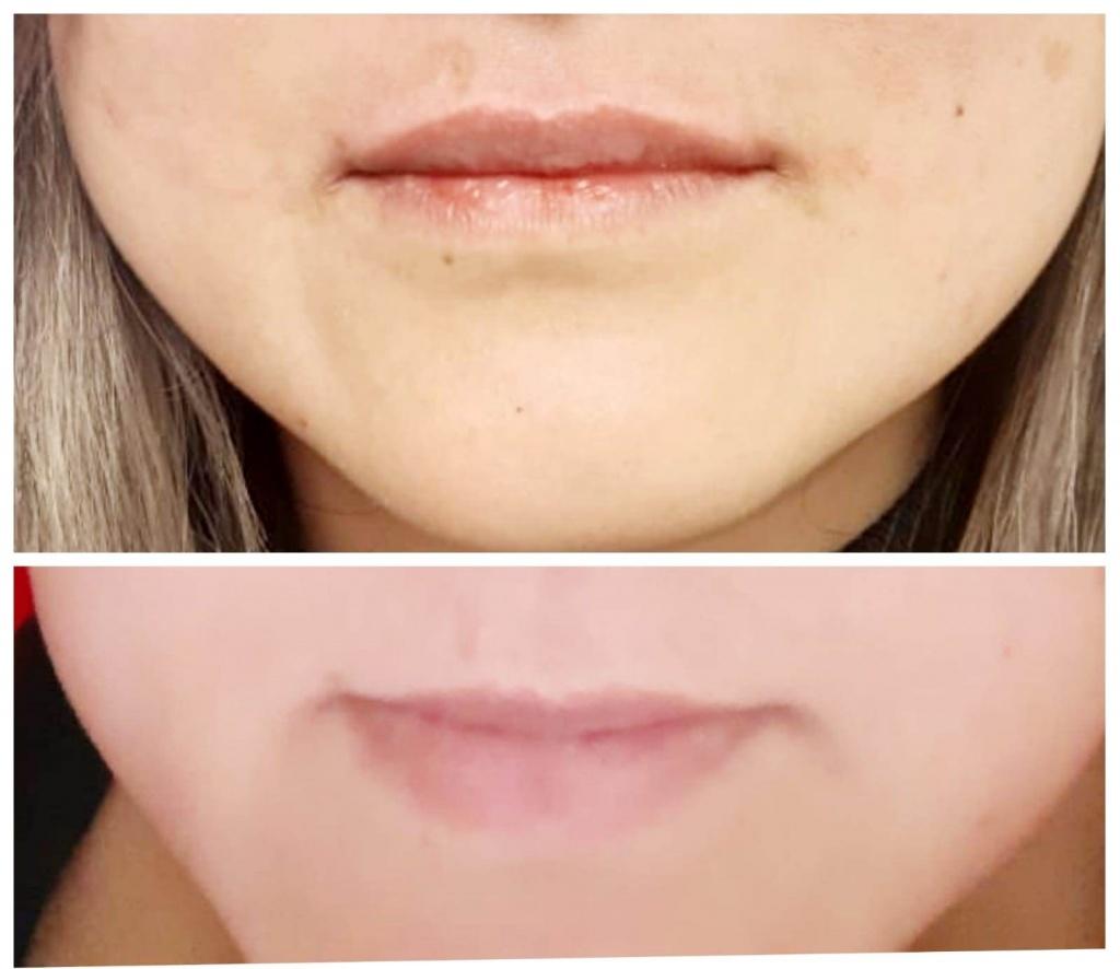 הזרקת חומצה היאלרונית לשפתיים