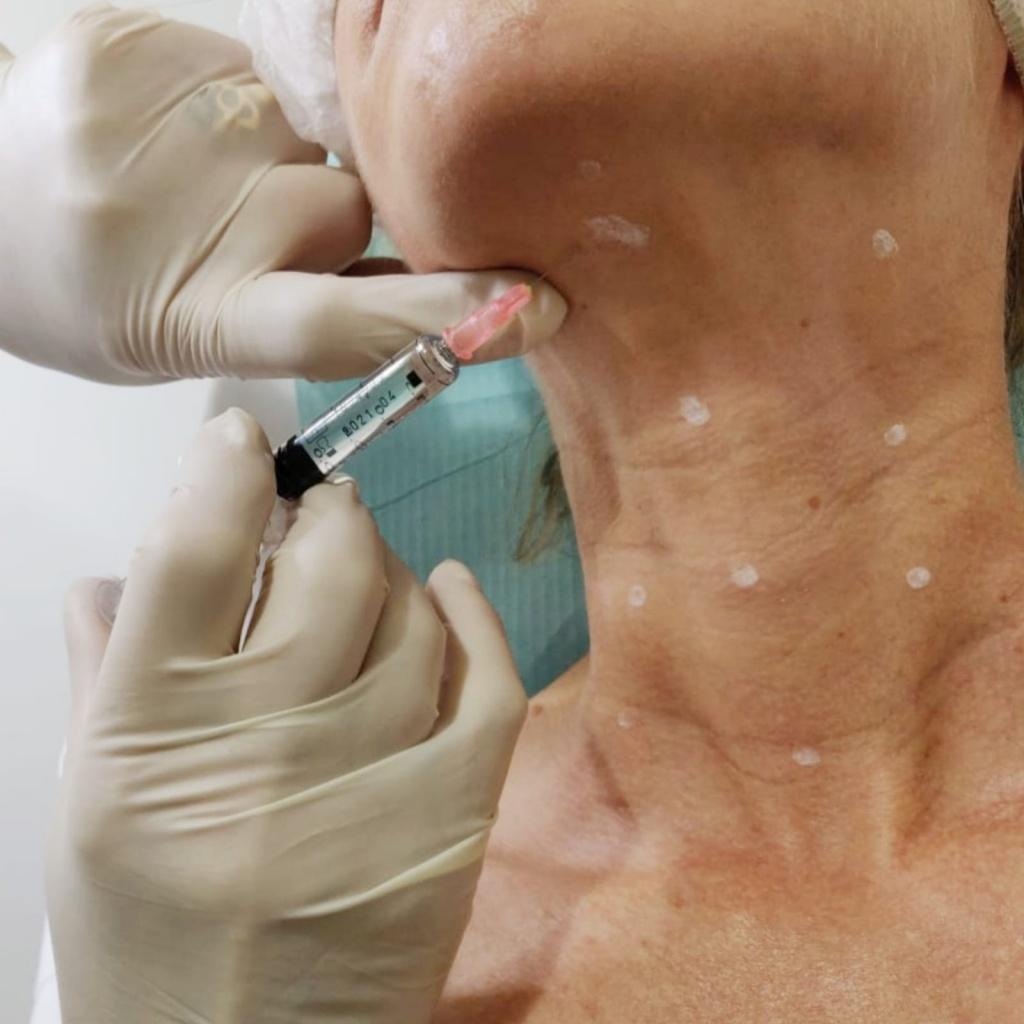 הזרקת חומצה היאלורונית להחלקת צוואר