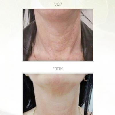 הזרקת חומצה היאלורונית לצוואר לפני ואחרי